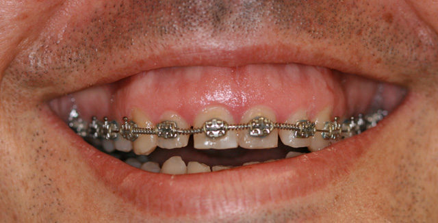 Exceso de encía: sonrisa gingival 2