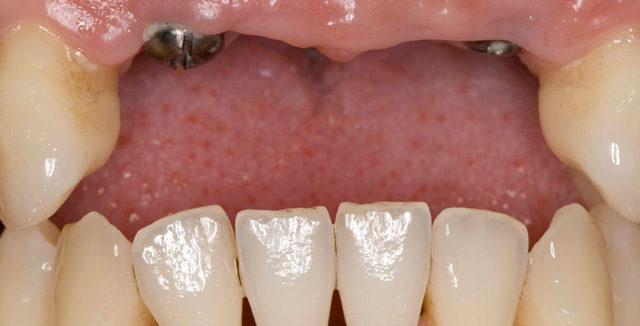 Prótesis sobre implantes. Dientes anteriores