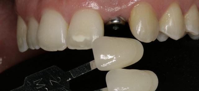 Prótesis sobre implante. Agenesia