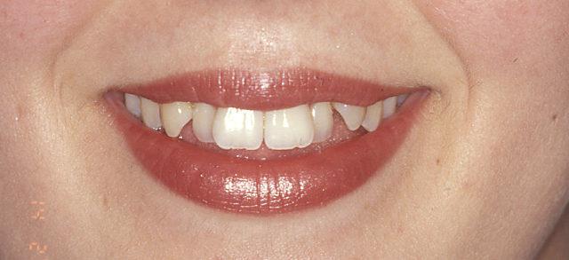 Dientes apiñados. Ortodoncia