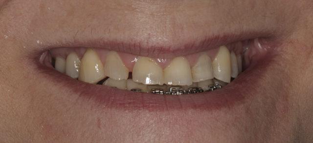 Rejuvenecimiento dental 2