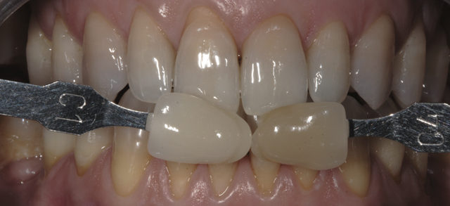 Blanqueamiento dental. Tetraciclinas